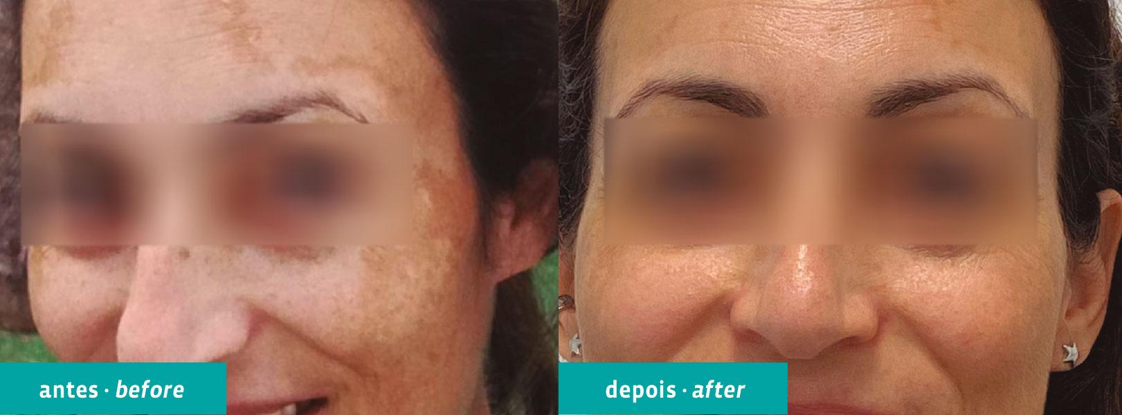 Tecnologia laser de última geração em dermatologia